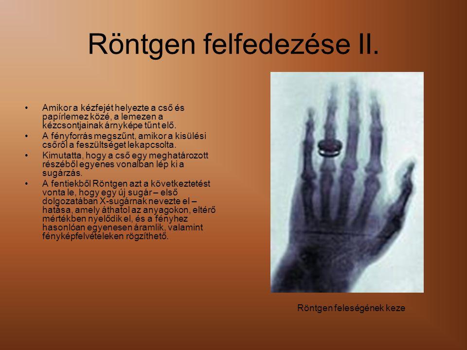 Röntgen felfedezése II.
