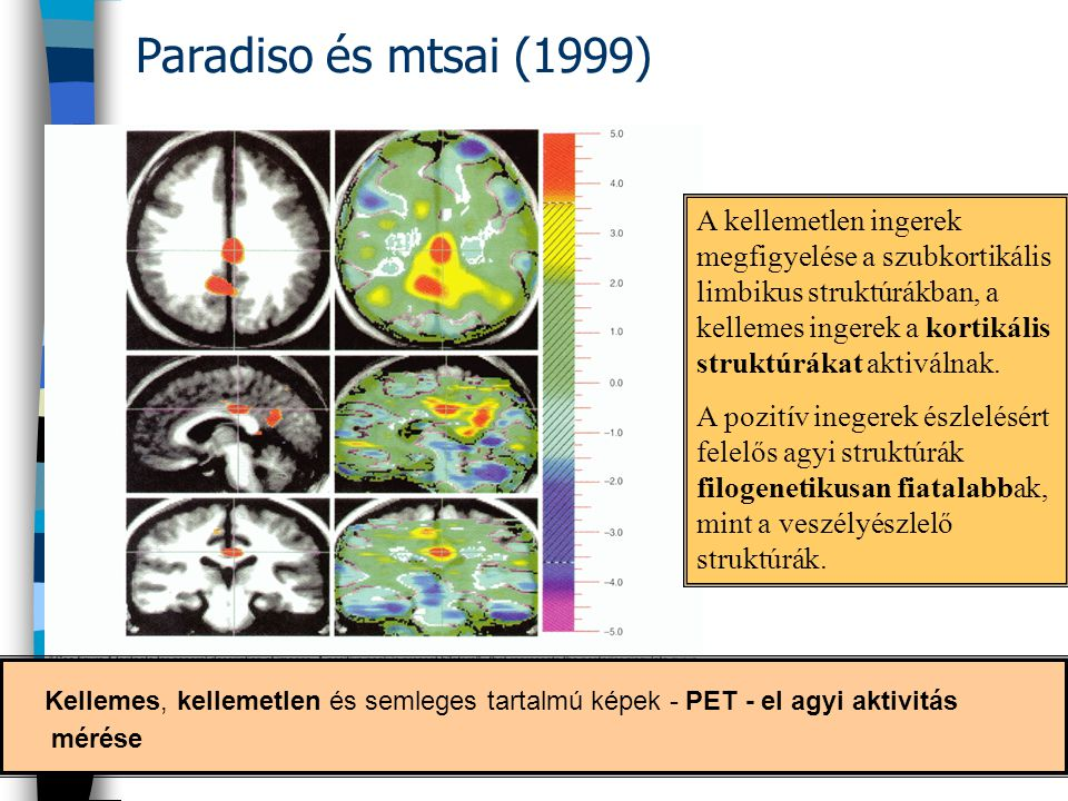 Paradiso és mtsai (1999)