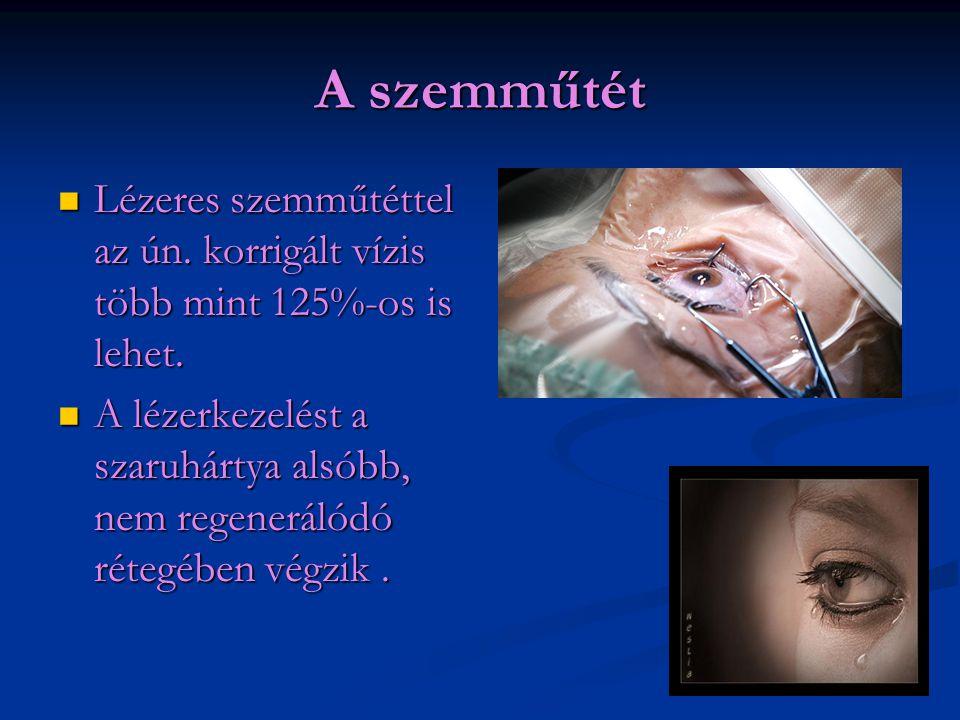 A szemműtét Lézeres szemműtéttel az ún. korrigált vízis több mint 125%-os is lehet.