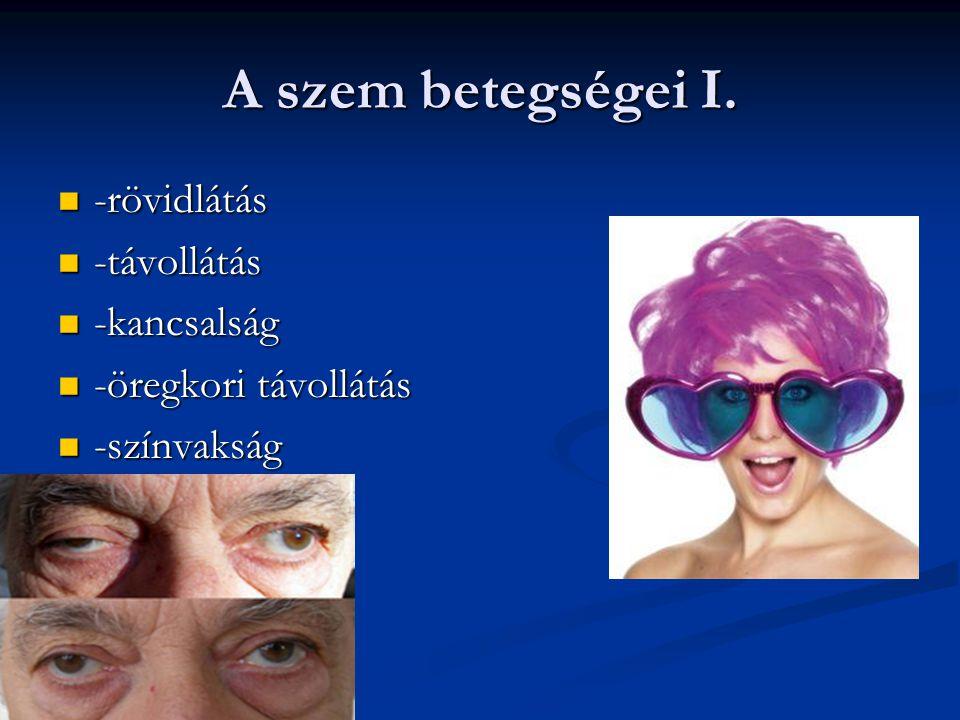 A szem betegségei I. -rövidlátás -távollátás -kancsalság