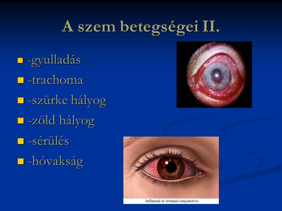 A szem betegségei II. -trachoma -szürke hályog -zöld hályog -sérülés