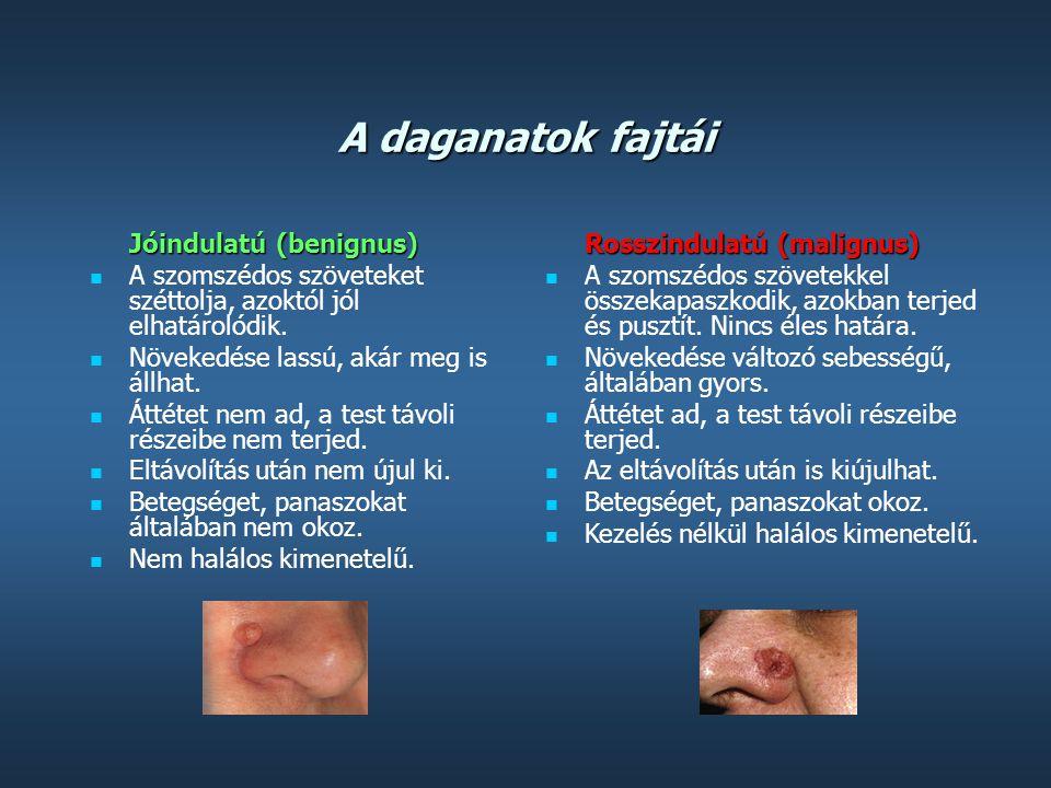 A daganatok fajtái Jóindulatú (benignus)