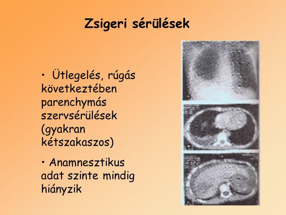 Zsigeri sérülések Ütlegelés, rúgás következtében parenchymás szervsérülések (gyakran kétszakaszos) Anamnesztikus adat szinte mindig hiányzik.