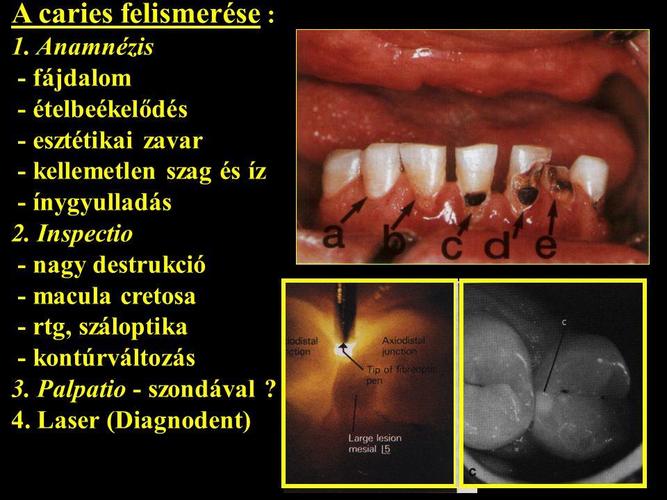 A caries felismerése : 1. Anamnézis - fájdalom - ételbeékelődés