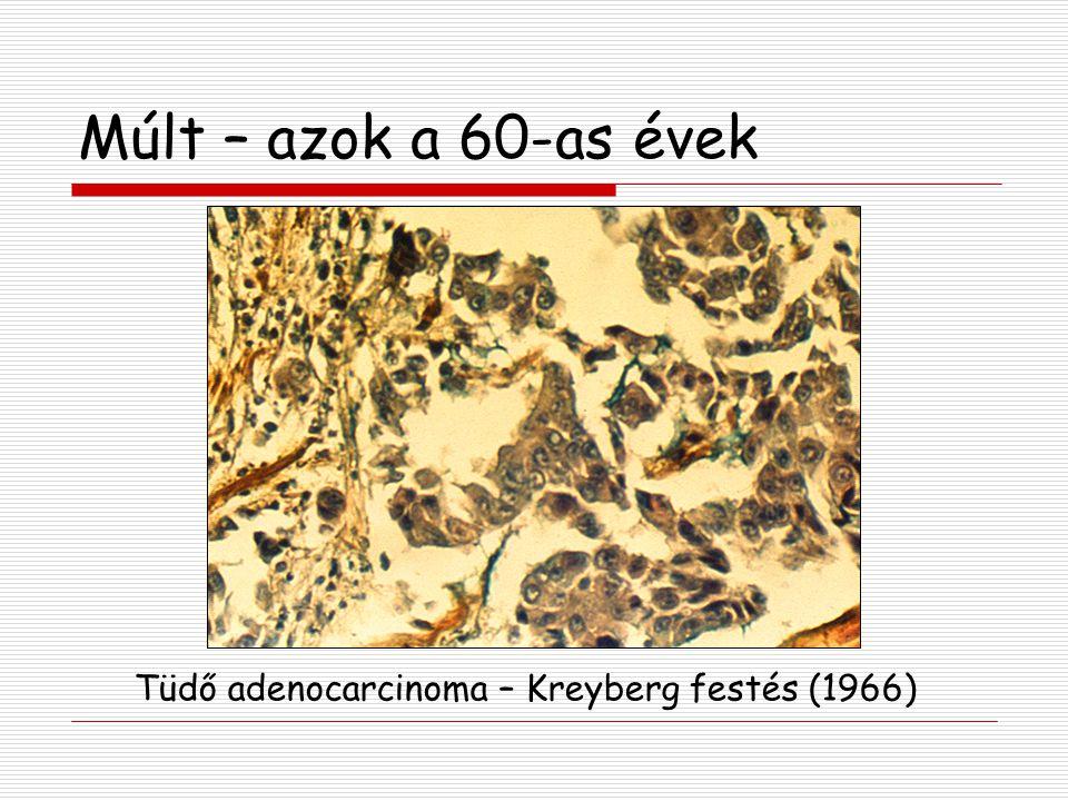 Tüdő adenocarcinoma – Kreyberg festés (1966)