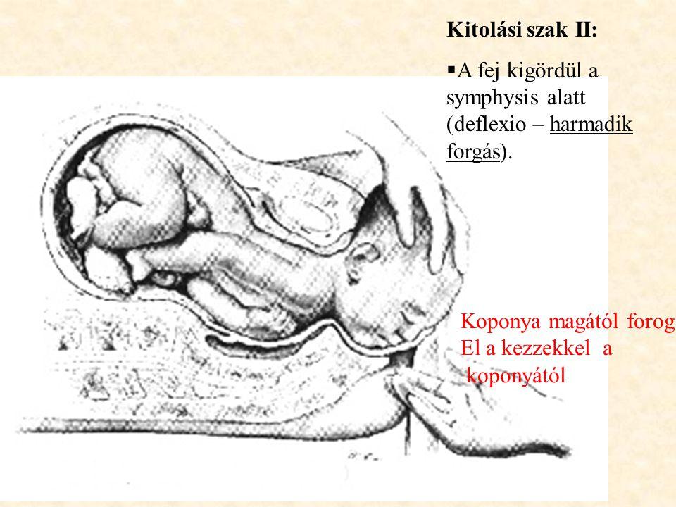 Kitolási szak II: A fej kigördül a symphysis alatt (deflexio – harmadik forgás). Koponya magától forog.