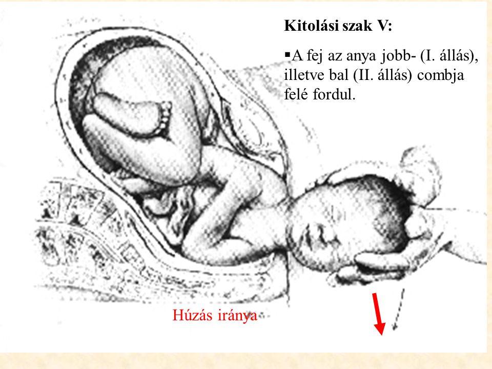 Kitolási szak V: A fej az anya jobb- (I. állás), illetve bal (II.
