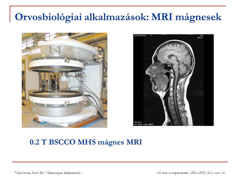 Orvosbiológiai alkalmazások: MRI mágnesek