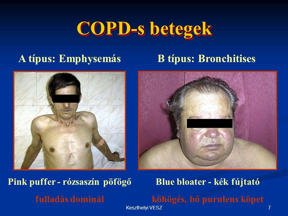 COPD-s betegek A típus: Emphysemás B típus: Bronchitises