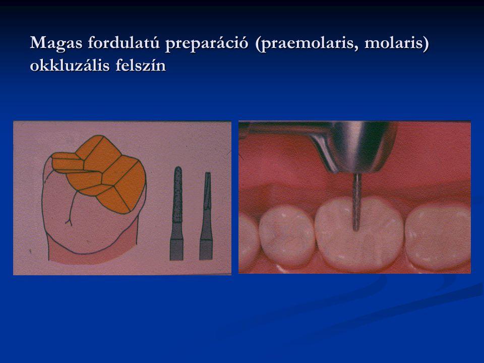 Magas fordulatú preparáció (praemolaris, molaris) okkluzális felszín