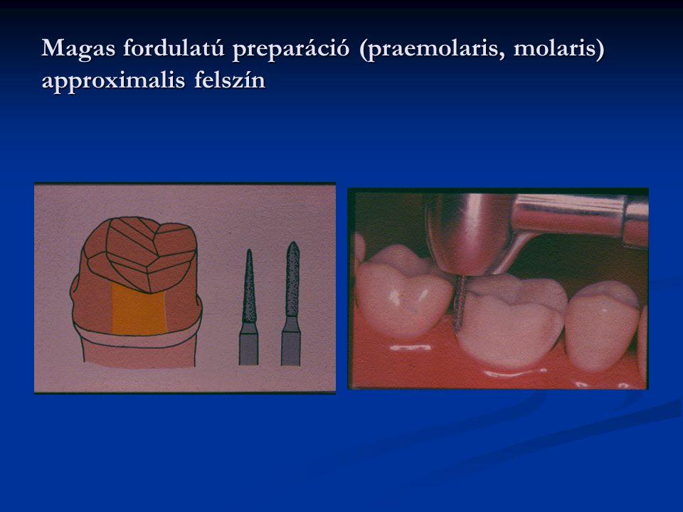 Magas fordulatú preparáció (praemolaris, molaris) approximalis felszín