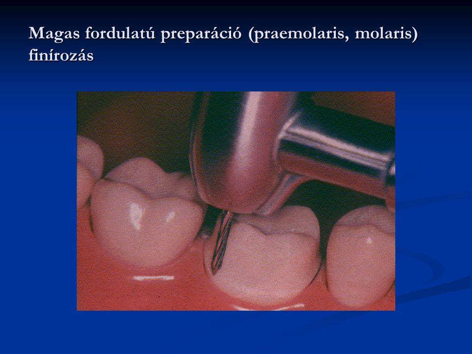 Magas fordulatú preparáció (praemolaris, molaris) finírozás