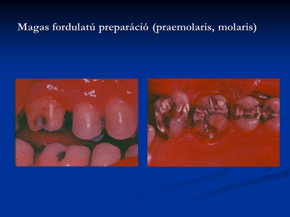 Magas fordulatú preparáció (praemolaris, molaris)