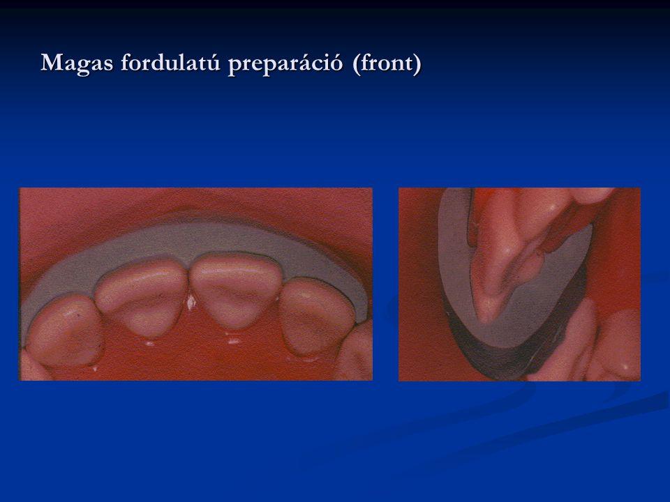 Magas fordulatú preparáció (front)