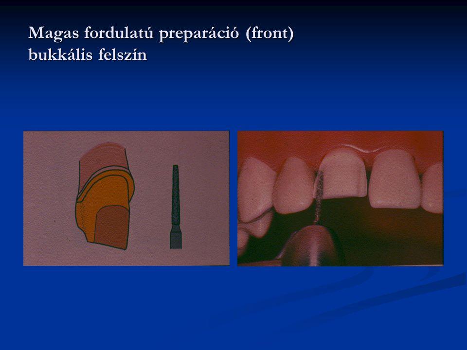 Magas fordulatú preparáció (front) bukkális felszín