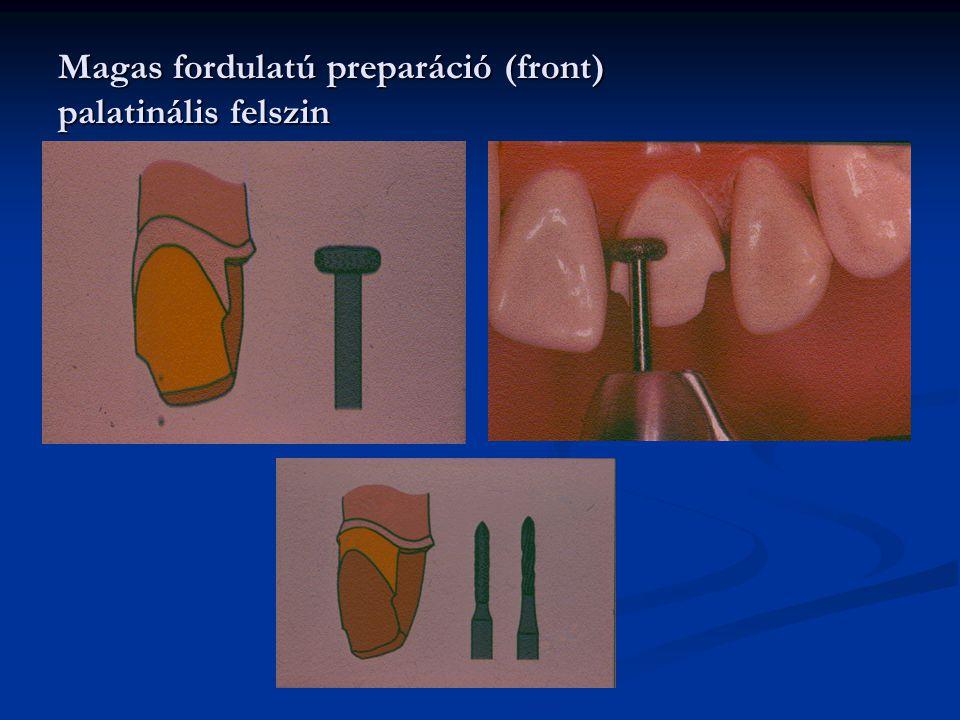 Magas fordulatú preparáció (front) palatinális felszin