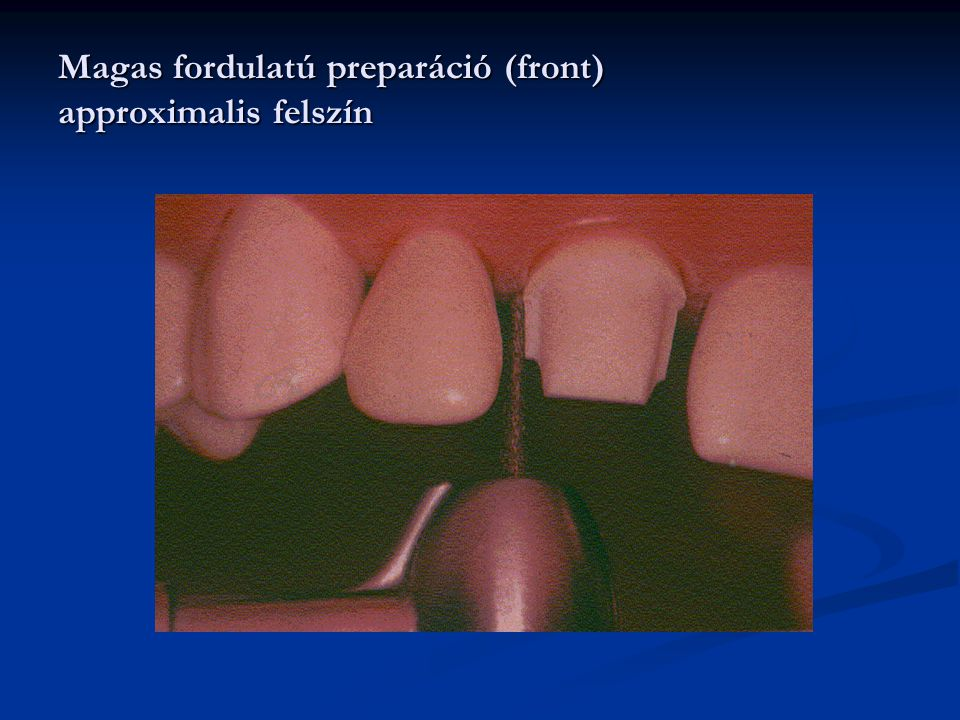 Magas fordulatú preparáció (front) approximalis felszín