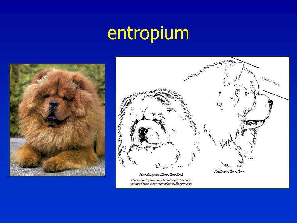 entropium