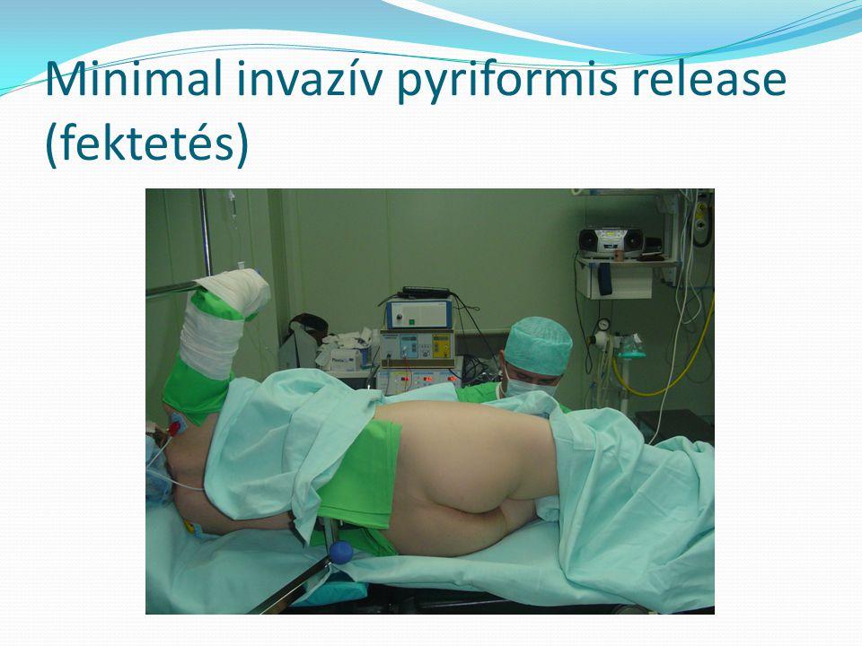 Minimal invazív pyriformis release (fektetés)
