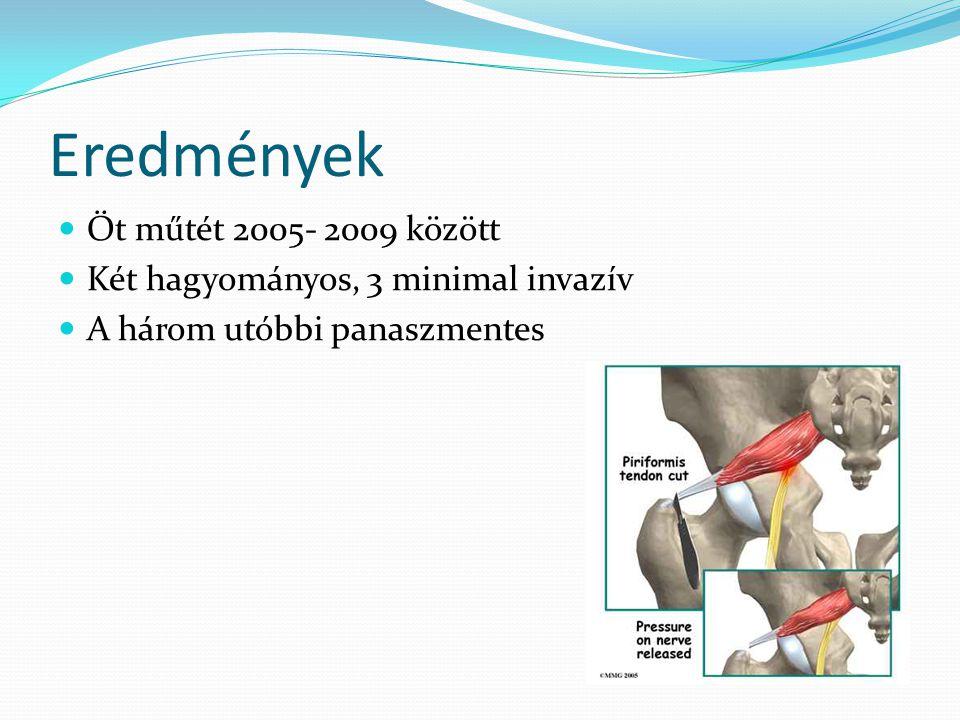 Eredmények Öt műtét 2005- 2009 között