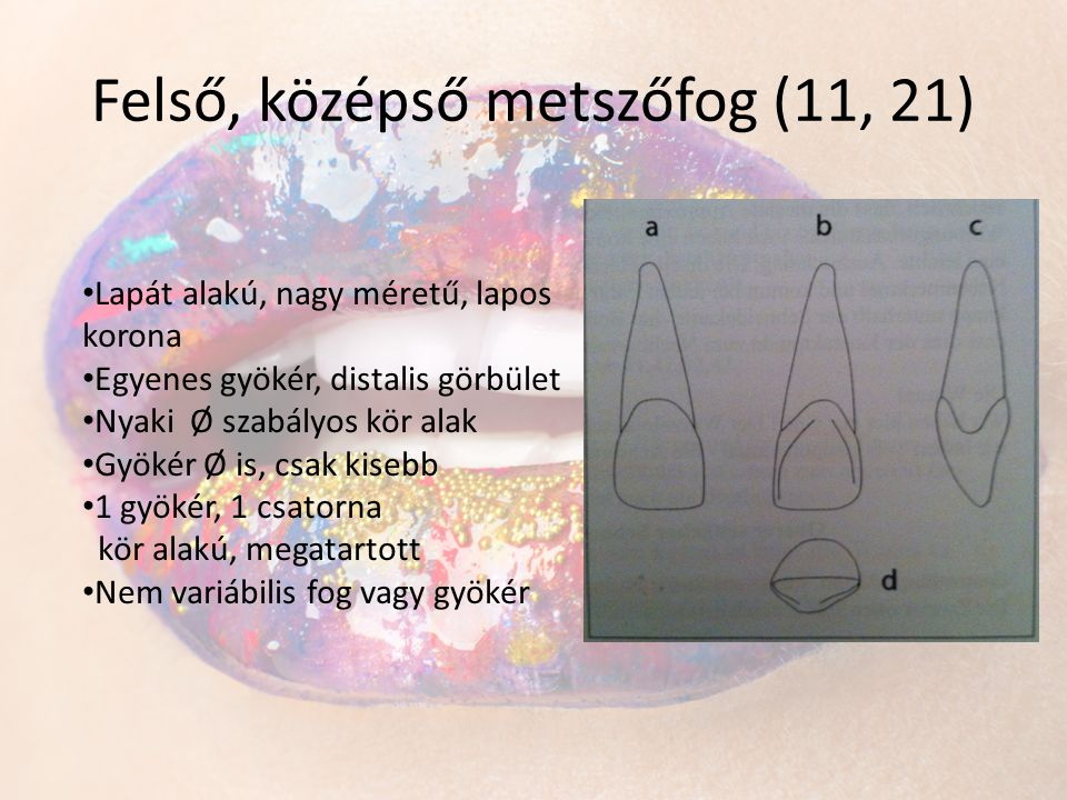 Felső, középső metszőfog (11, 21)