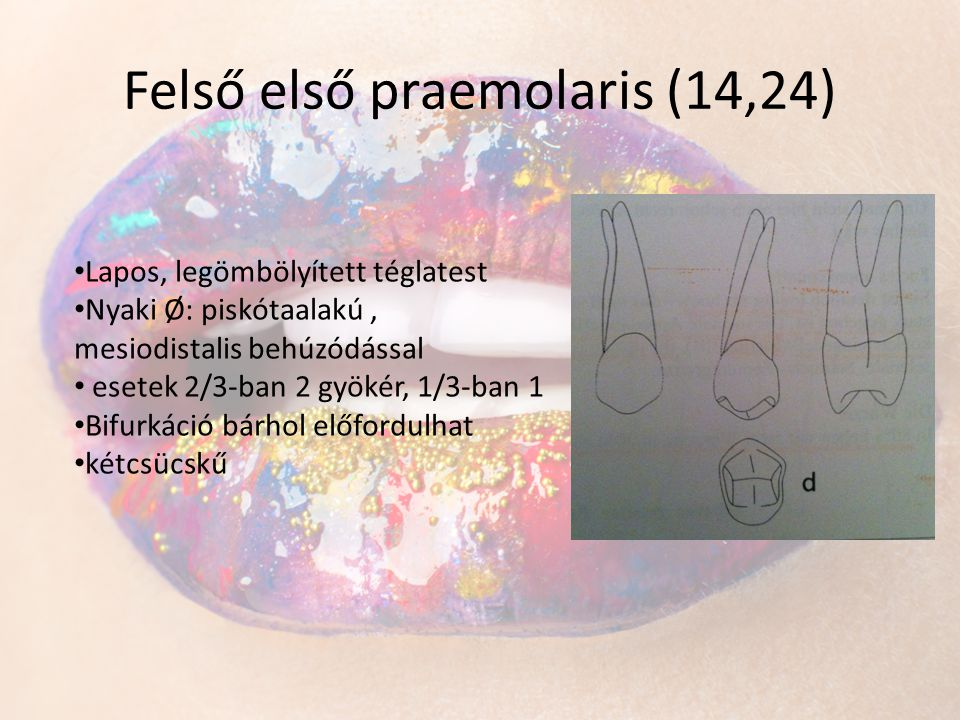 Felső első praemolaris (14,24)