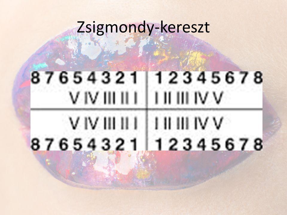 Zsigmondy-kereszt