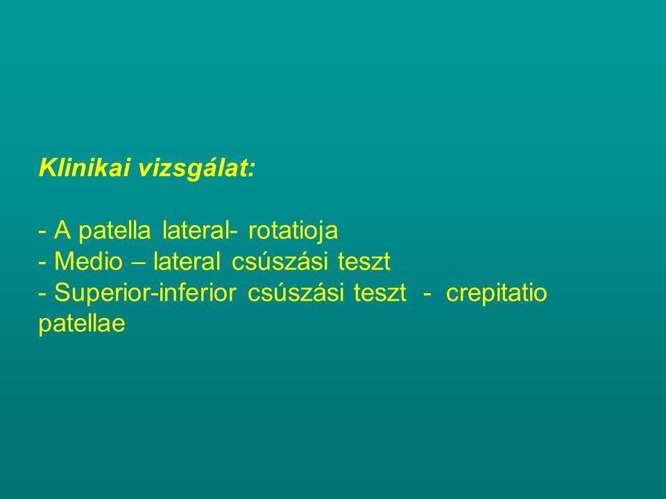 Klinikai vizsgálat: - A patella lateral- rotatioja - Medio – lateral csúszási teszt - Superior-inferior csúszási teszt - crepitatio patellae