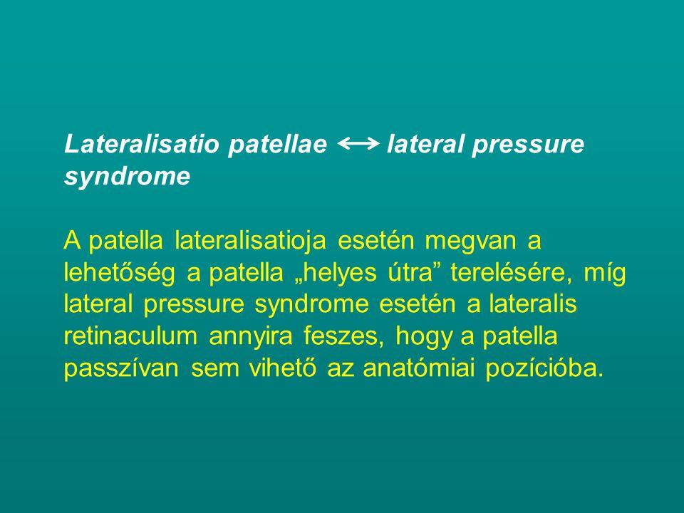 """Lateralisatio patellae lateral pressure syndrome A patella lateralisatioja esetén megvan a lehetőség a patella """"helyes útra terelésére, míg lateral pressure syndrome esetén a lateralis retinaculum annyira feszes, hogy a patella passzívan sem vihető az anatómiai pozícióba."""