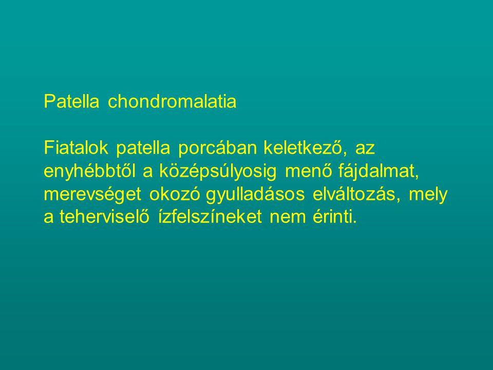 Patella chondromalatia Fiatalok patella porcában keletkező, az enyhébbtől a középsúlyosig menő fájdalmat, merevséget okozó gyulladásos elváltozás, mely a teherviselő ízfelszíneket nem érinti.