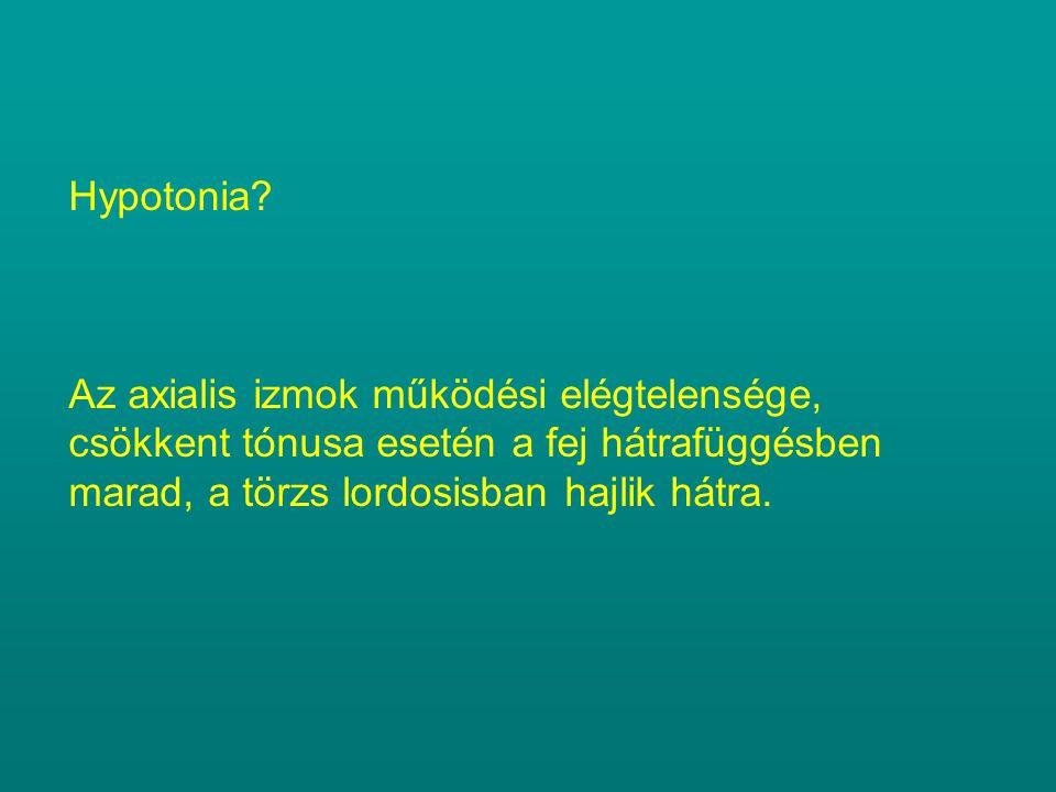 Hypotonia.