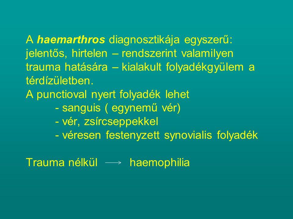 A haemarthros diagnosztikája egyszerű: jelentős, hirtelen – rendszerint valamilyen trauma hatására – kialakult folyadékgyülem a térdízületben.