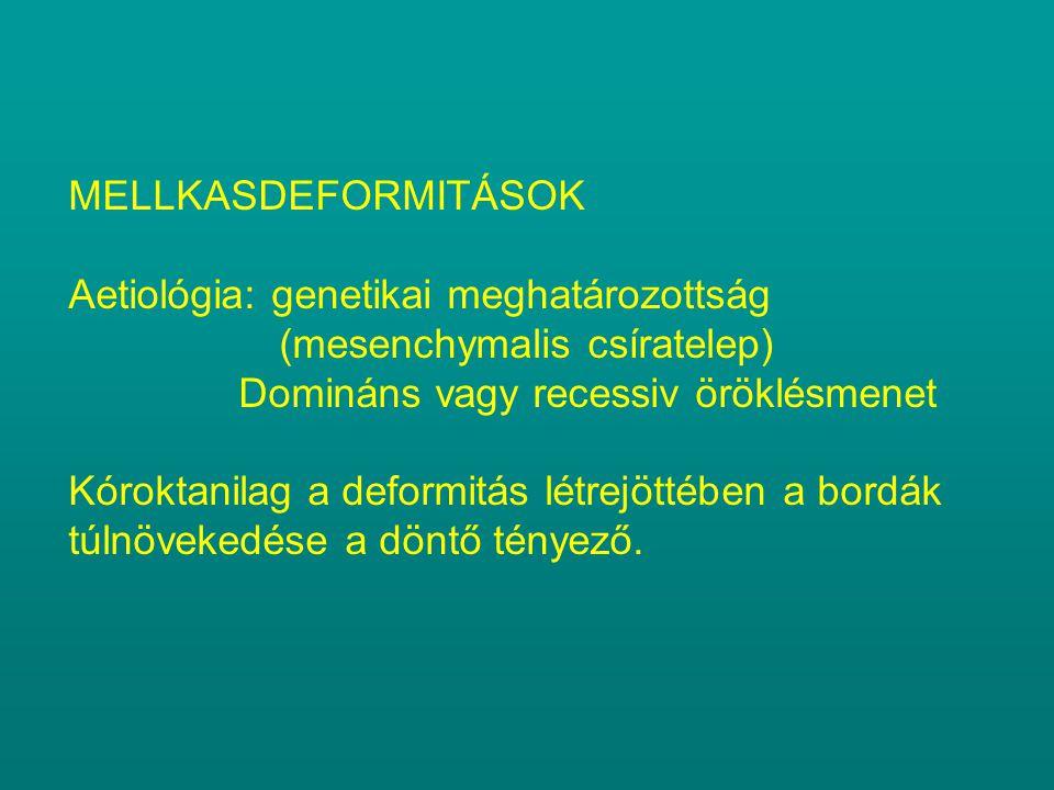 MELLKASDEFORMITÁSOK Aetiológia: genetikai meghatározottság (mesenchymalis csíratelep) Domináns vagy recessiv öröklésmenet.