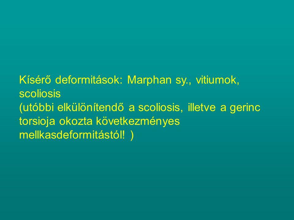 Kísérő deformitások: Marphan sy., vitiumok, scoliosis