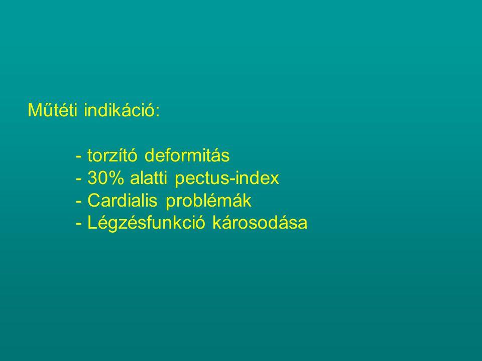 Műtéti indikáció: - torzító deformitás. - 30% alatti pectus-index. - Cardialis problémák. - Légzésfunkció károsodása.