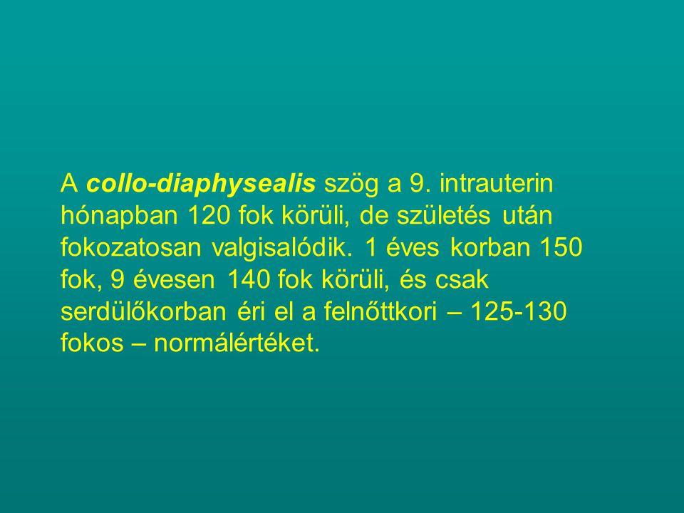 A collo-diaphysealis szög a 9