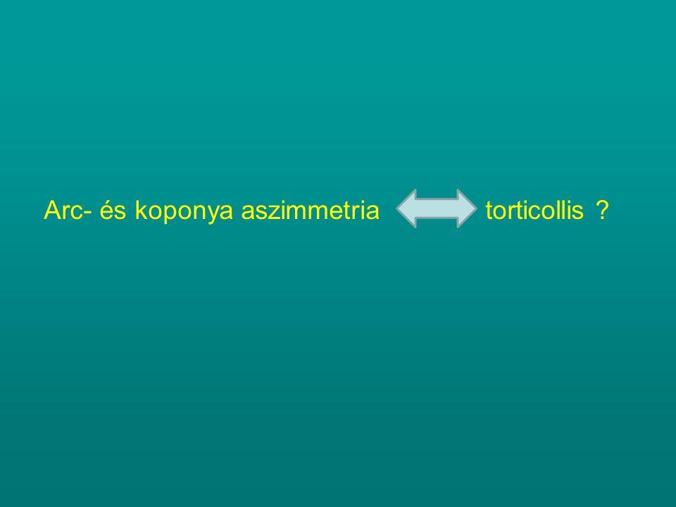 Arc- és koponya aszimmetria torticollis