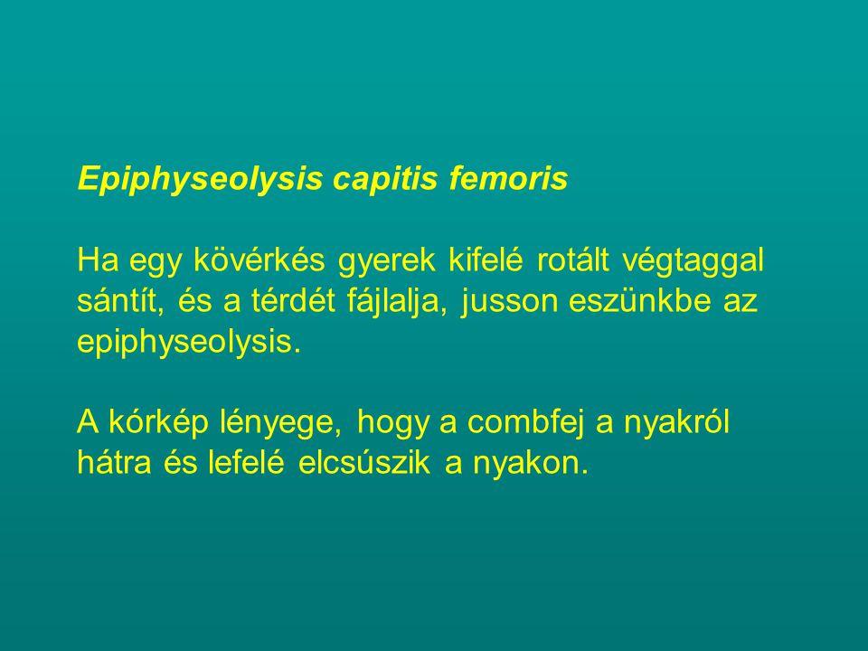 Epiphyseolysis capitis femoris Ha egy kövérkés gyerek kifelé rotált végtaggal sántít, és a térdét fájlalja, jusson eszünkbe az epiphyseolysis.