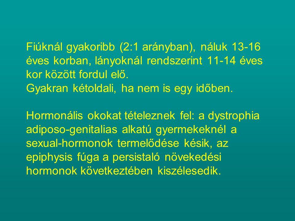 Fiúknál gyakoribb (2:1 arányban), náluk 13-16 éves korban, lányoknál rendszerint 11-14 éves kor között fordul elő.