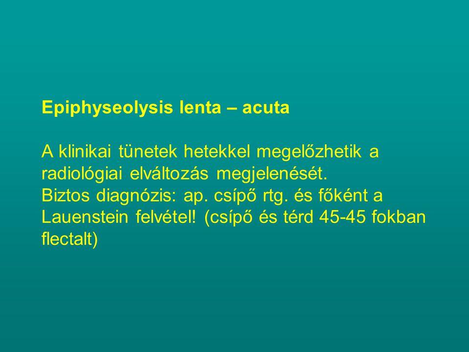 Epiphyseolysis lenta – acuta A klinikai tünetek hetekkel megelőzhetik a radiológiai elváltozás megjelenését.