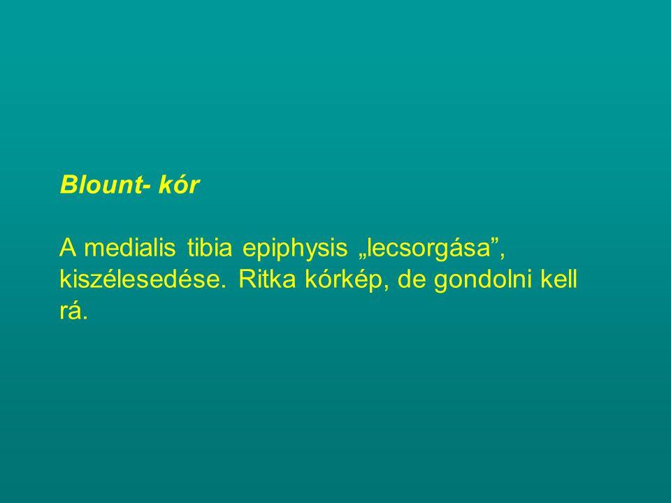 """Blount- kór A medialis tibia epiphysis """"lecsorgása , kiszélesedése"""