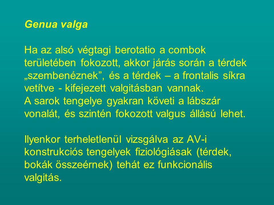 """Genua valga Ha az alsó végtagi berotatio a combok területében fokozott, akkor járás során a térdek """"szembenéznek , és a térdek – a frontalis síkra vetítve - kifejezett valgitásban vannak."""