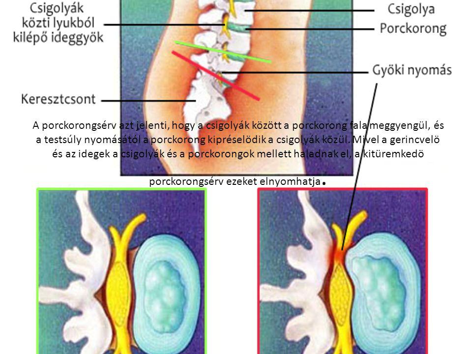 A porckorongsérv azt jelenti, hogy a csigolyák között a porckorong fala meggyengül, és a testsúly nyomásától a porckorong kipréselödik a csigolyák közül.