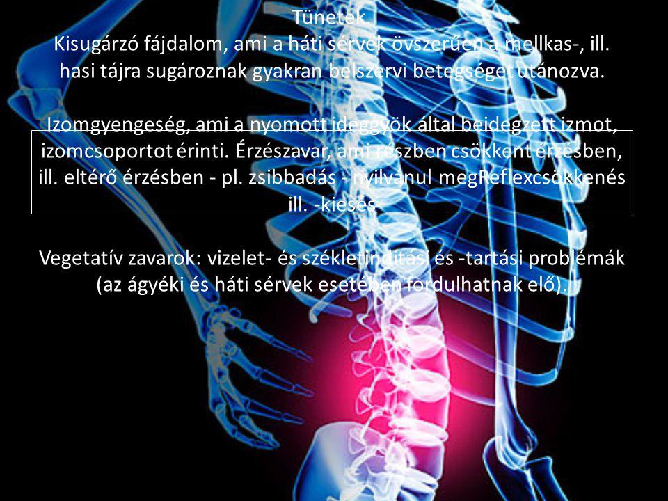 Tünetek. Kisugárzó fájdalom, ami a háti sérvek övszerűen a mellkas-, ill.