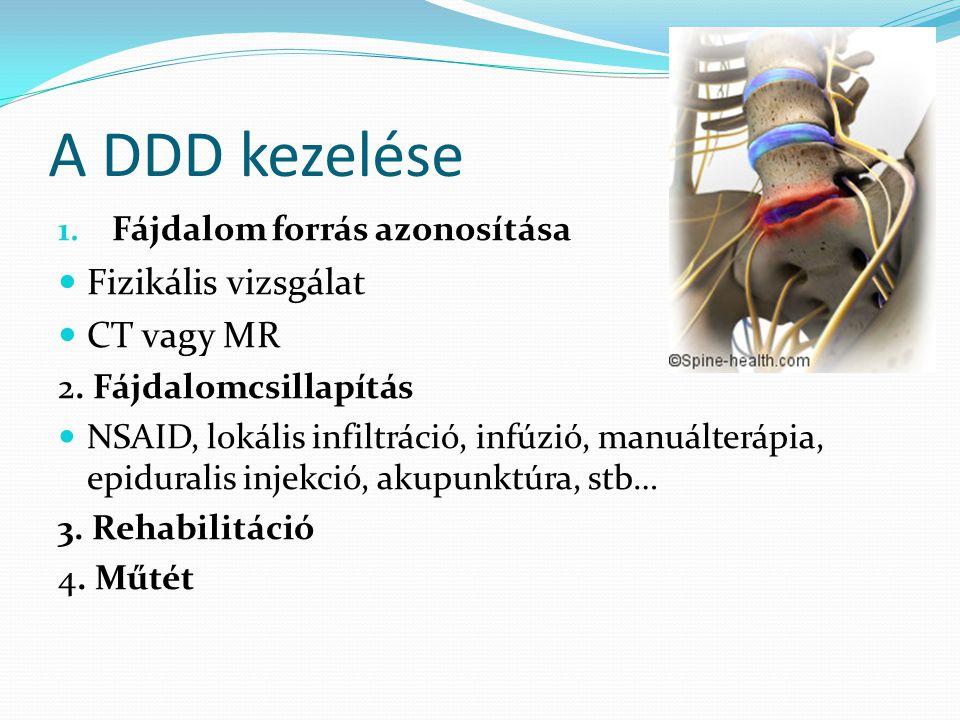 A DDD kezelése Fizikális vizsgálat CT vagy MR