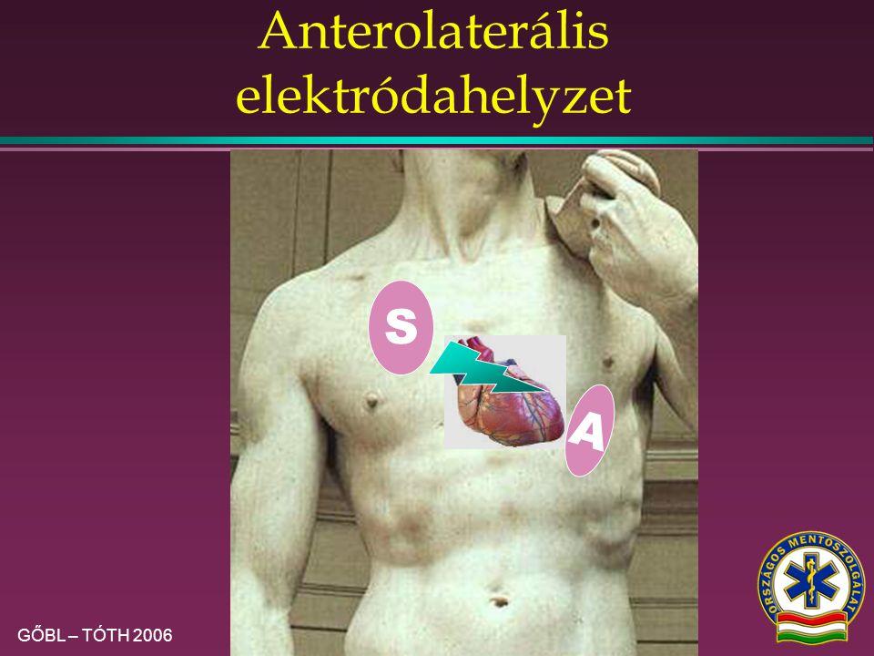 Anterolaterális elektródahelyzet