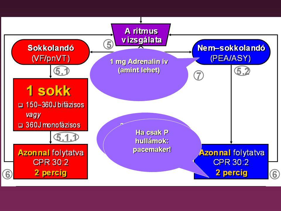 1 mg Adrenalin iv (amint lehet) Ha csak P hullámok: pacemaker!