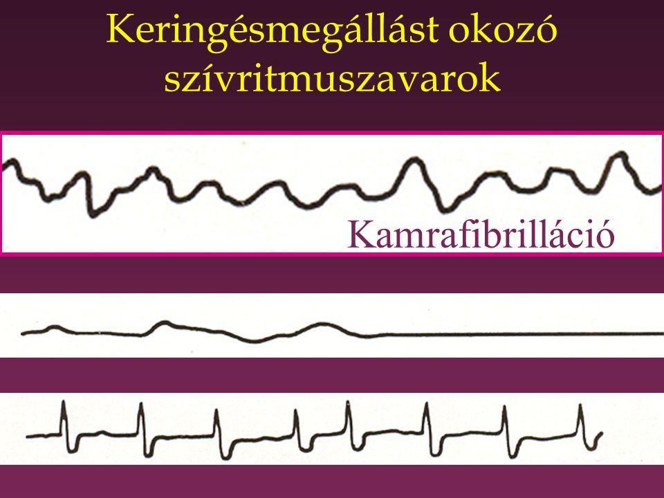 Keringésmegállást okozó szívritmuszavarok