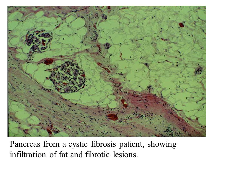 Pancreas from a cystic fibrosis patient, showing infiltration of fat and fibrotic lesions.