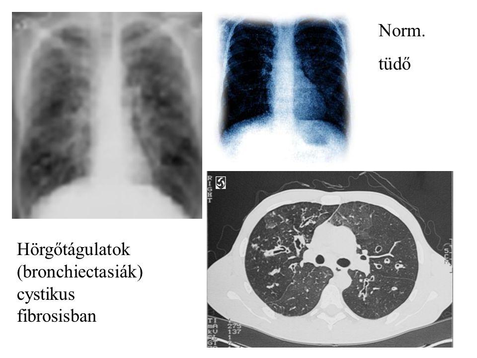 Norm. tüdő Hörgőtágulatok (bronchiectasiák) cystikus fibrosisban